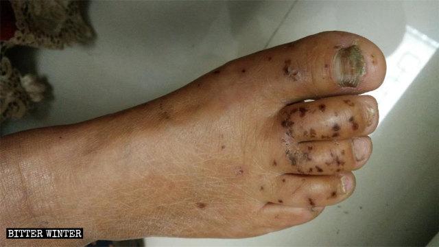 En los pies de la miembro de la IDT que fue sometida a torturas mediante descargas eléctricas aún pueden verse marcas oscuras provocadas por las quemaduras.