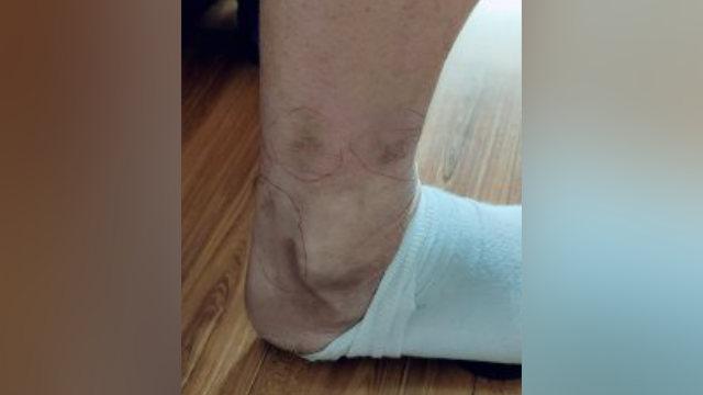 Cicatrices que quedaron en la pierna del Sr. Zhao como consecuencia de la tortura infligida con bastones eléctricos.